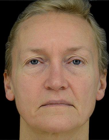 Before 1,  Ansiktslyft, midface,  Övre ögonlocksplastik, pannlyft